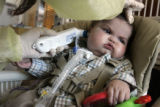 Milo Skinner, ten months, who suffers from a small and collapsing windpipe, has his temperature...
