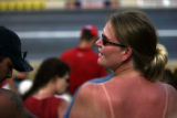 Even after using sunscreen, Jennifer Robledo of Thornton, Colo., ended up with a nasty sunburn on...