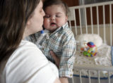 Janay Skinner (cq) and her 11-month-old son Milo Skinner, who suffers from a small and collapsing...