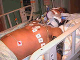 In a photo taken by his mother, Thomas Charles Armstrong, 37, is shown here laying in a hospital...